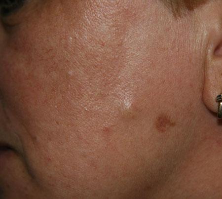 Жировики на лице лечение в домашних условиях отзывы - Bonbouton.ru